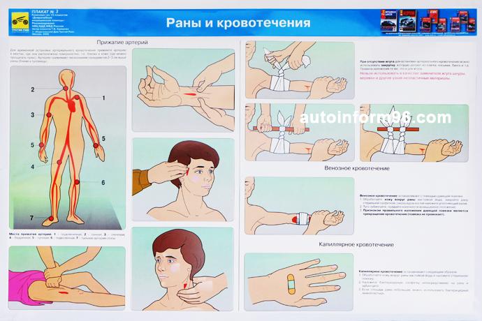 учебный плакат раны и кровотечения