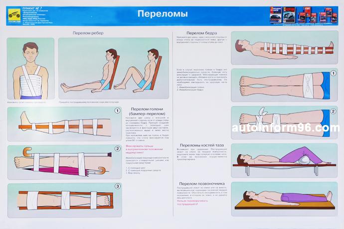 учебный плакат виды переломов